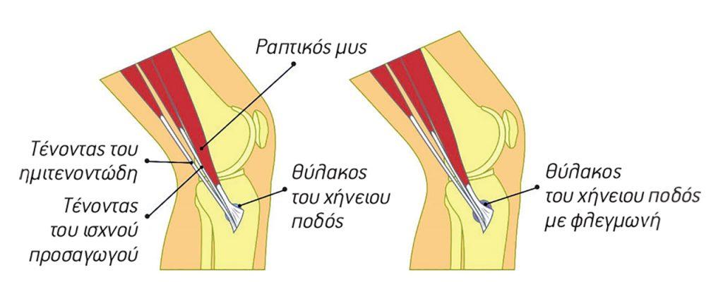 τραυματισμός το πόδι της χήνας σχήμα